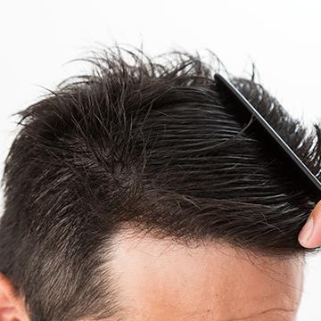 前髪の抜け毛はなぜ起きる?原因を知って対策に活かそう!