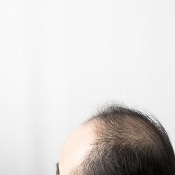 抜け毛のタイプ
