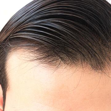 髪の仕組みQ&A