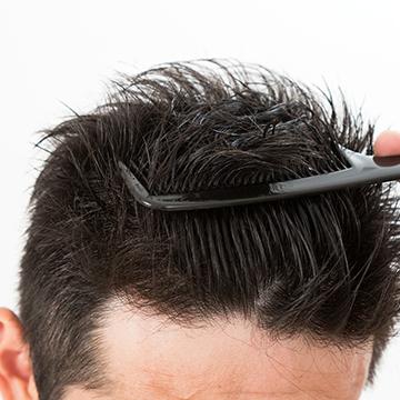 前髪の抜け毛が目立つ… 原因と対策特集