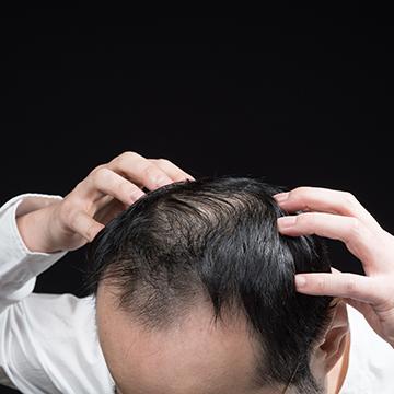 細い髪は薄毛に見えやすい…髪を太くする方法はあるの?