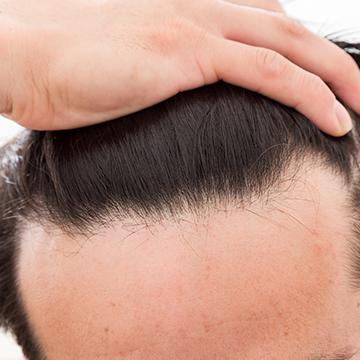 M字の生え際が目立つ…発毛促進剤&育毛剤で治すことはできる?