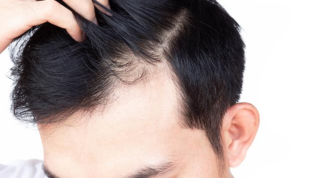 時期によっては髪の毛が抜ける量は多くなる?原因と対処法を紹介