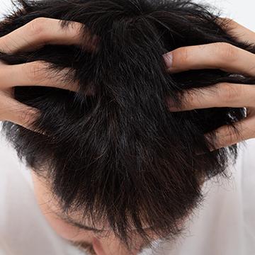 頭皮の乾燥は生活習慣が原因?注意点と対処法を紹介