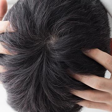 頭皮に湿疹ができたときに考えらえる5つの症状