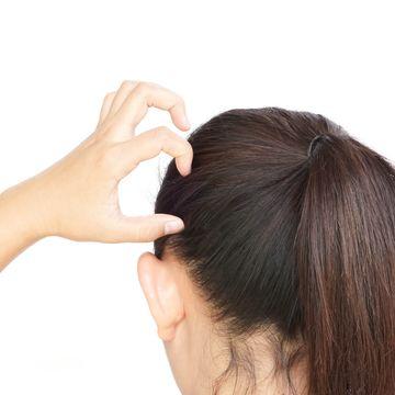 頭皮にかさぶたができるのは頭皮湿疹?考えられる原因や対処方法