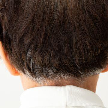 頭皮がむけるのはどんな理由?考えられる原因から対策までを解説