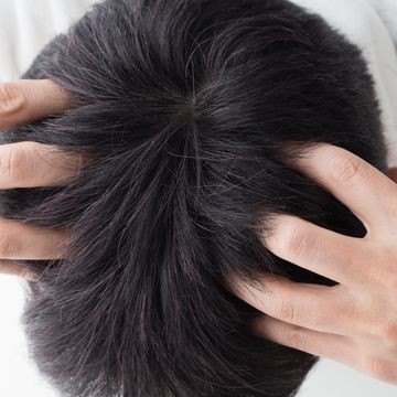 自分では気づきにくい頭頂部の薄毛!原因と正しくケアをする方法