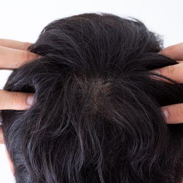 ノコギリヤシは抜け毛の予防になる?期待できる効果や注意点を解説!