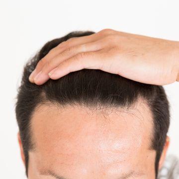 おでこが広いのが悩み!男女別・おすすめの髪型とヘアケア方法