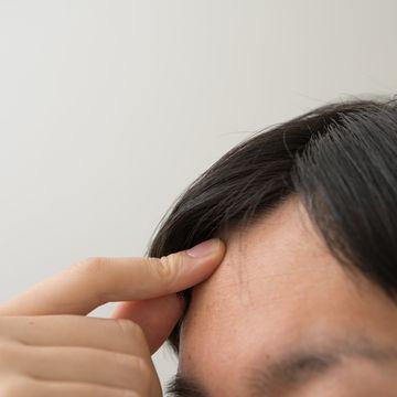 AGAの予防には何が有効?抜け毛を防ぐためにできることとは?