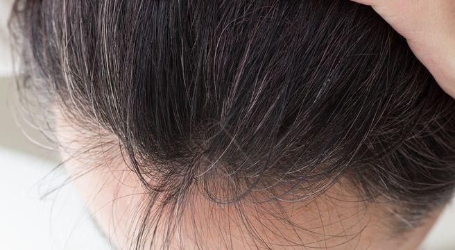 AGAをあきらめない!原因と症状を知って早めの育毛対策をはじめよう!