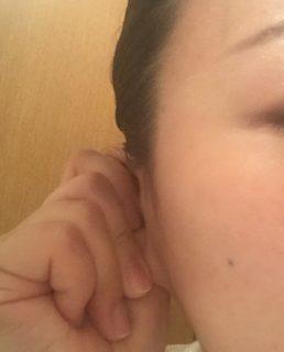 頭皮の浮腫みにカンタン耳回し👂